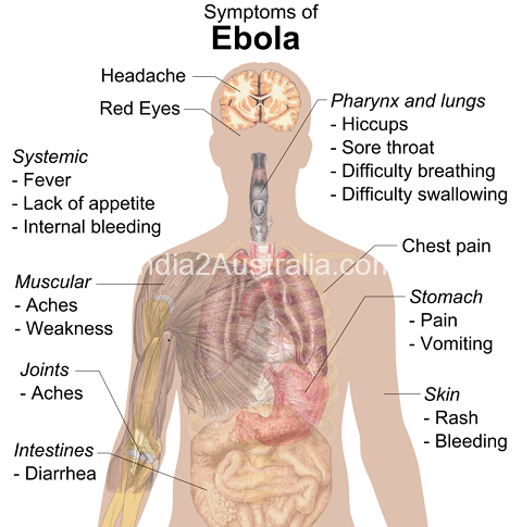 Ebola, What you should know