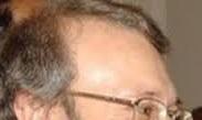 forehead with a backward angle