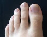 long index toe