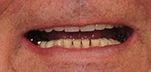 men with short teeth