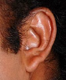 mohanlal ear