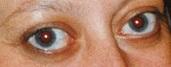 potruding eye balls